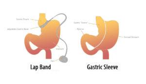 weight loss surgery sleeve 8