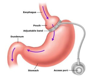 Is Gastric Banding The Cheapest Weight Loss Surgery?