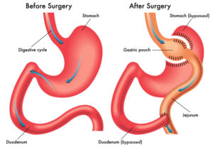 Gastric bypass surgery picture
